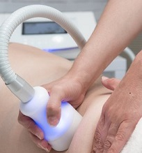 cryosculpting2